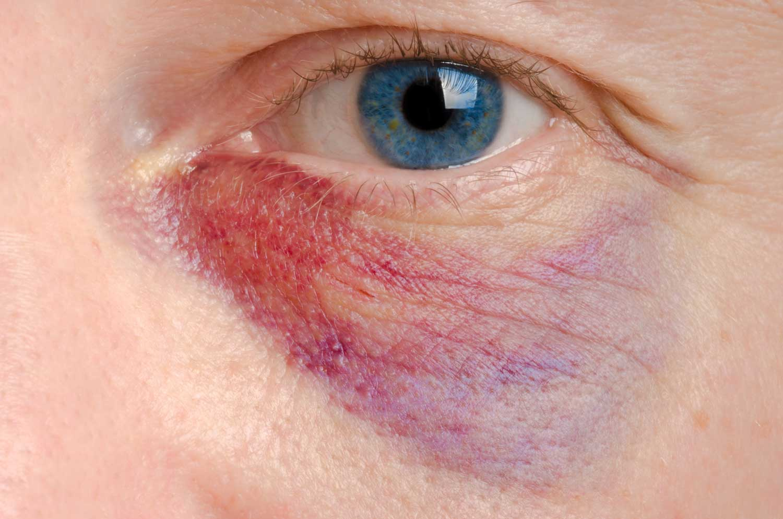woman on man domestic violence common